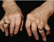 two hands with advanced arthritis
